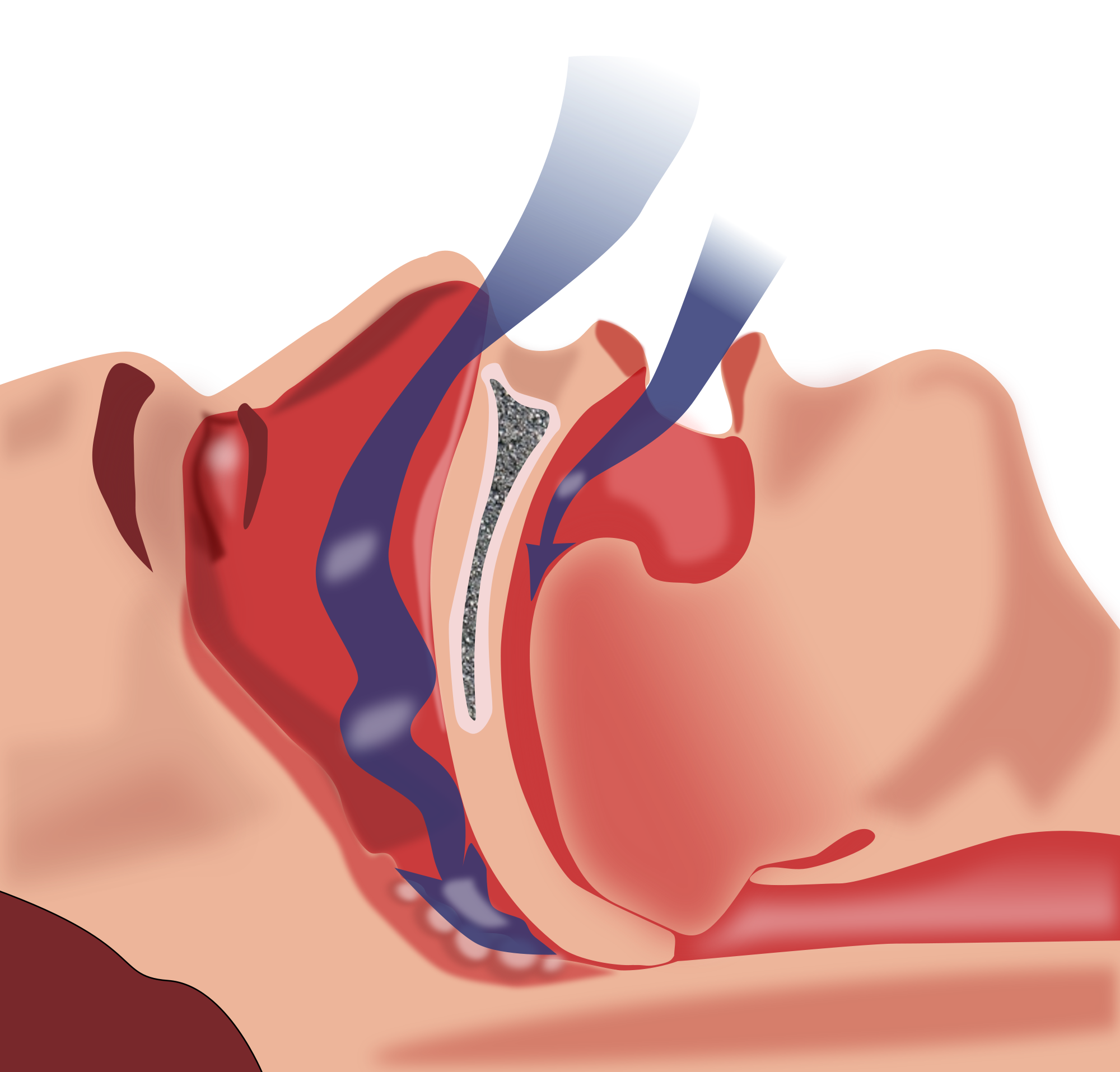 Sleep Apnea type 2 diabetes